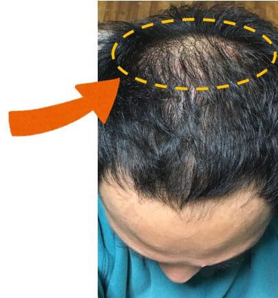 多立寶 東森 多髮寶 生髮 養髮 健髮 育髮 掉髮 CSC 落髮 一袋女王 生髮專家 禿頭